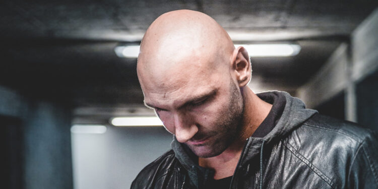 Early Signs and Symptoms of Male Pattern Baldness main