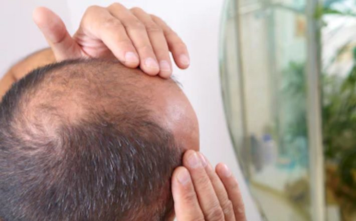 Hair Transplants in Istanbul Turkey Why are they so Popular balding