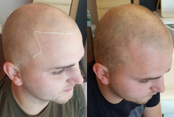 Innovative New Answer to Hair Loss Arrives in Leeds treatment